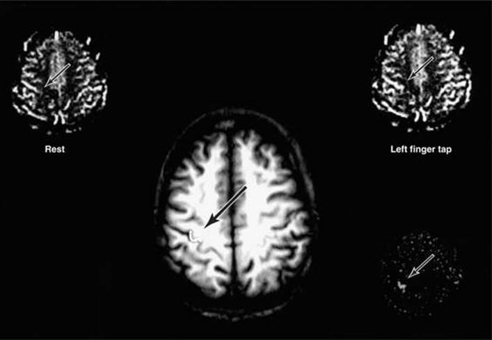 Imaging of the Brain - Clinical Neuroanatomy, 28 ed.