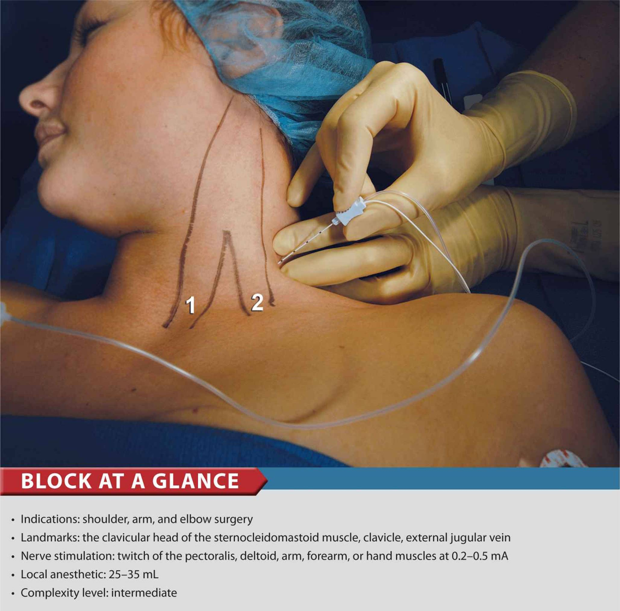 peripheral nerve block- indications and contraindications Block failure (need to supplement or induce general anesthesia) contraindications to peripheral nerve block pediatric patients, combative patients, demented patients.