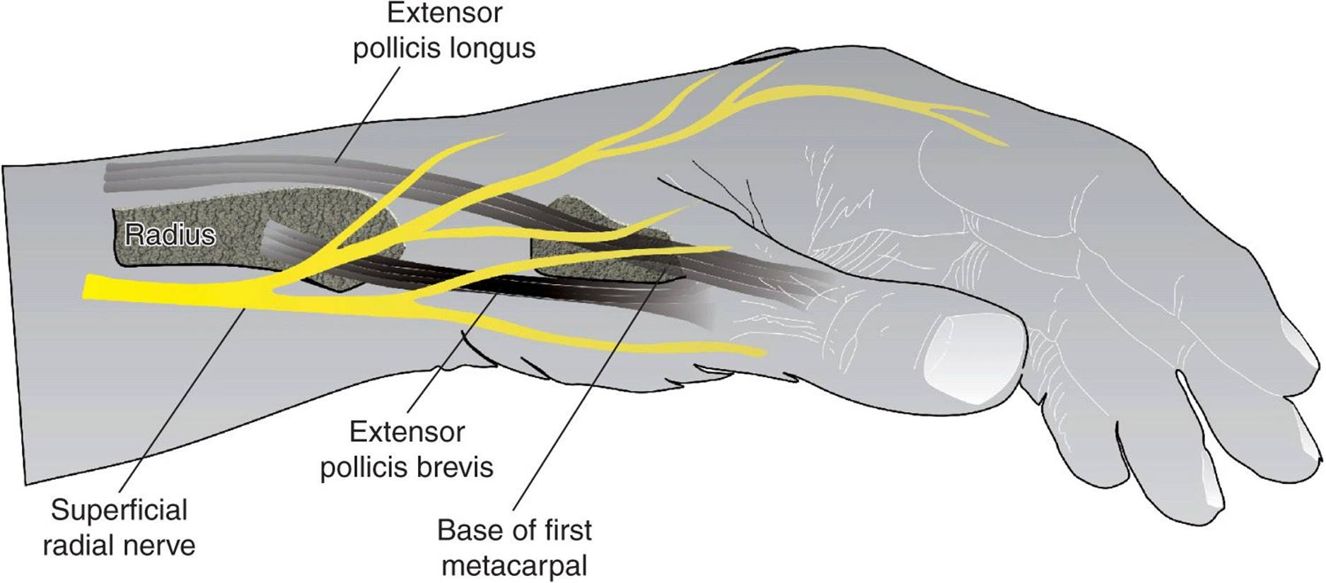 Wrist Block - Hadzic\'s Peripheral Nerve Blocks and Anatomy for ...