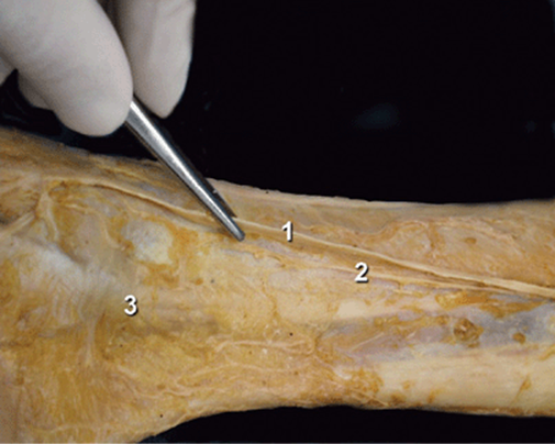 Ankle Block - Hadzic's Peripheral Nerve Blocks and Anatomy ...