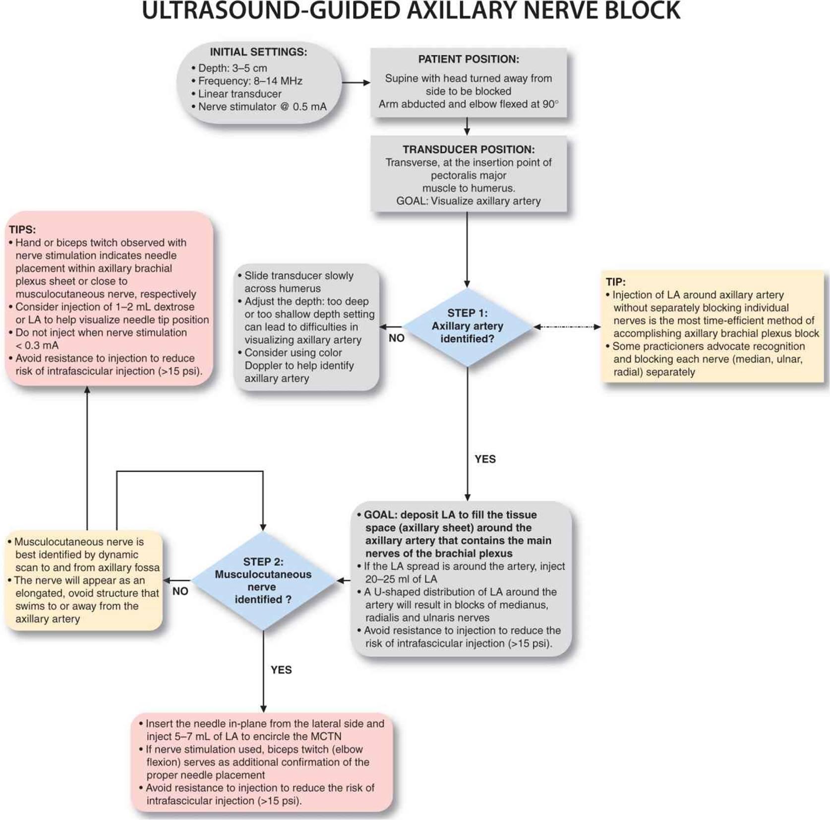 Ultrasound Guided Axillary Brachial Plexus Block Hadzics