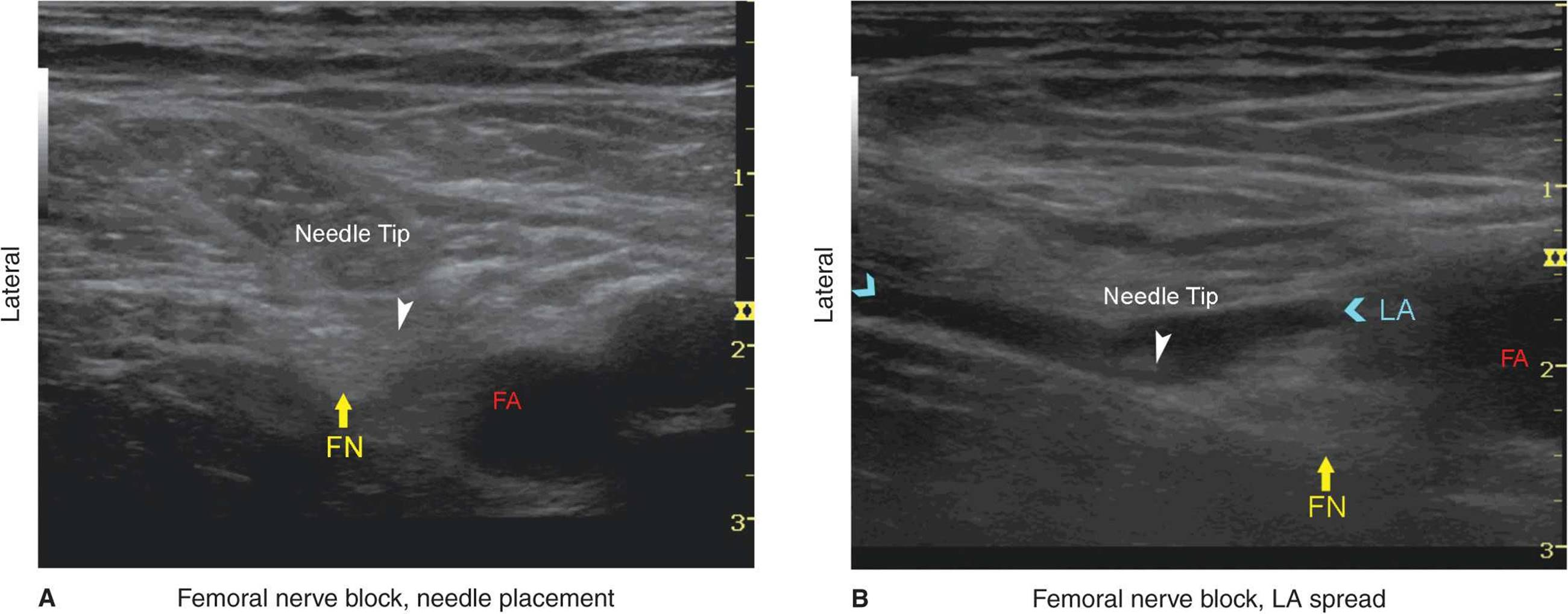 Ultrasound Guided Femoral Nerve Block Hadzics Peripheral Nerve
