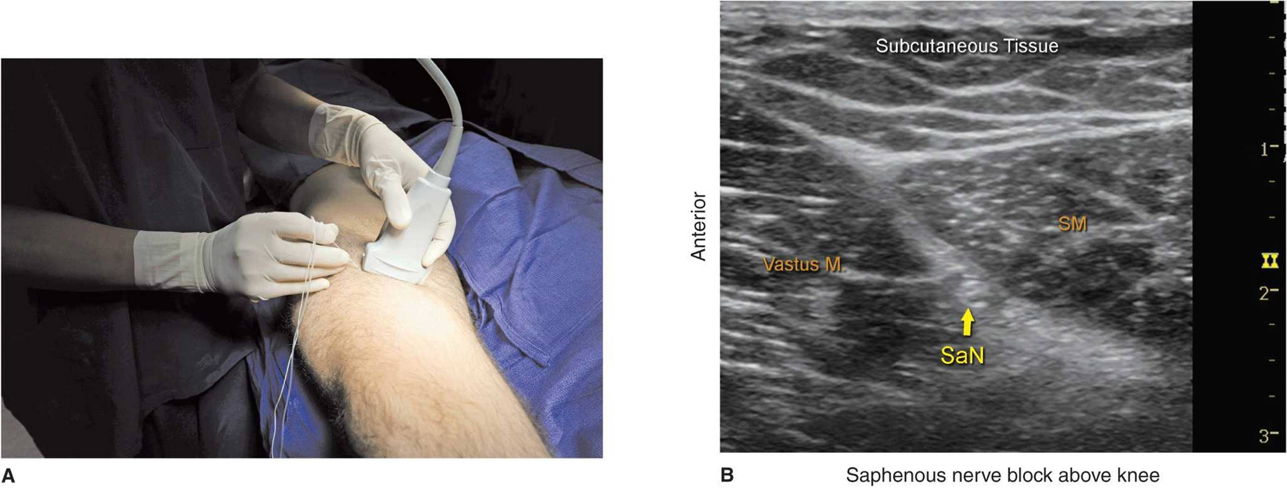 Ultrasound-Guided Saphenous Nerve Block - Hadzic\'s Peripheral Nerve ...