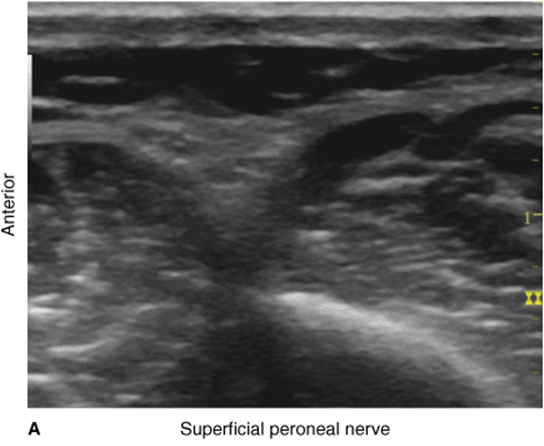 Ultrasound-Guided Ankle Block - Hadzic\'s Peripheral Nerve Blocks and ...