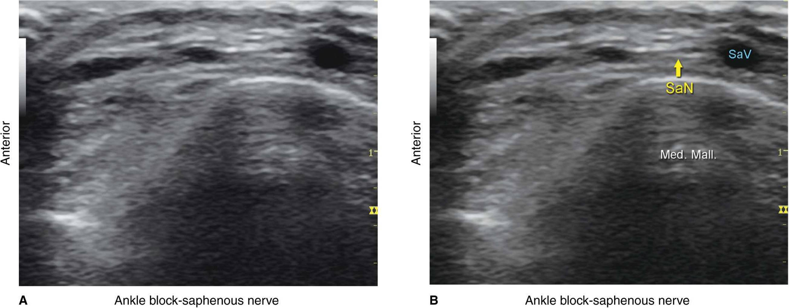 Ultrasound-Guided Ankle Block - Hadzic's Peripheral Nerve ...