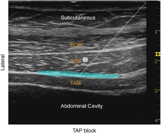 ultrasound guided glossopharyngeal nerve block