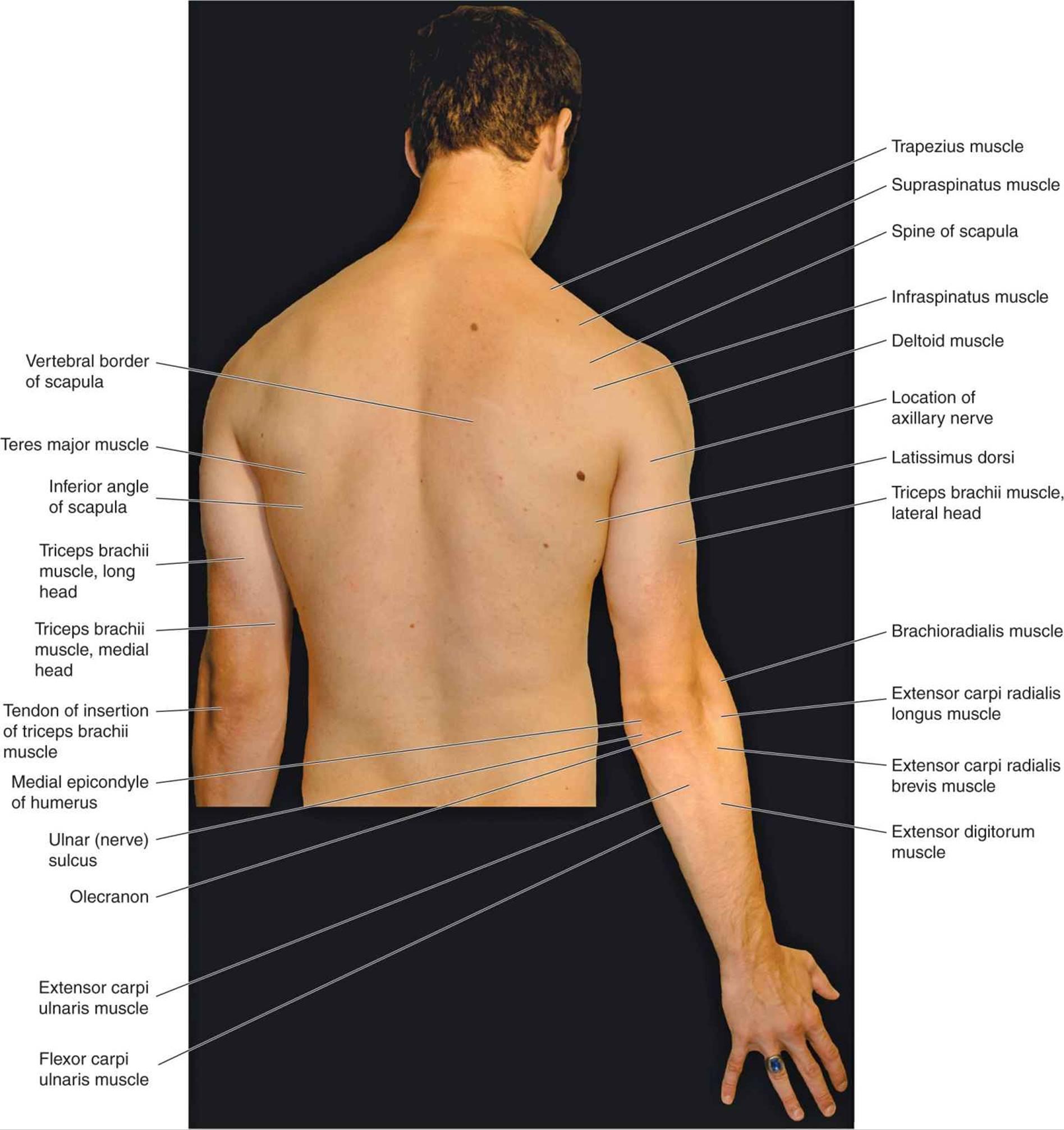 Atlas of Surface Anatomy - Hadzic\'s Peripheral Nerve Blocks and ...