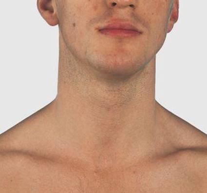 Neck Surface Anatomy 4 Edition