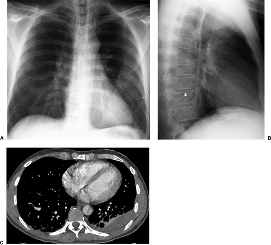 Thoracic Imaging in the Critically Ill - The Core Curriculum