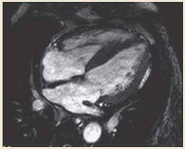 Cardiac MRI and CT - The Cleveland Clinic Cardiology Board