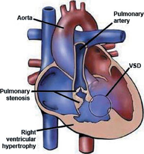 Tetralogy Of Fallot Echocardiography In Pediatric And Adult