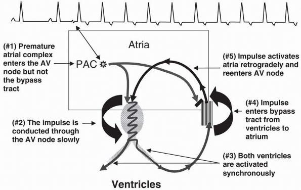 supraventricular tachycardia due to reentry