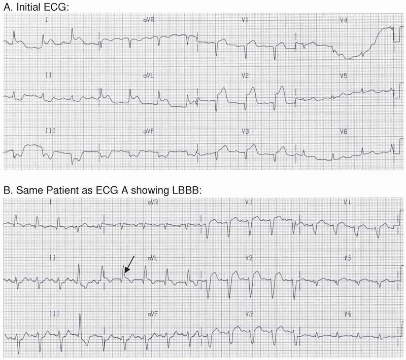Acute Coronary Syndrome: ST Elevation Myocardial Infarction