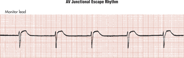 clinical electrocardiography a simplified approach pdf