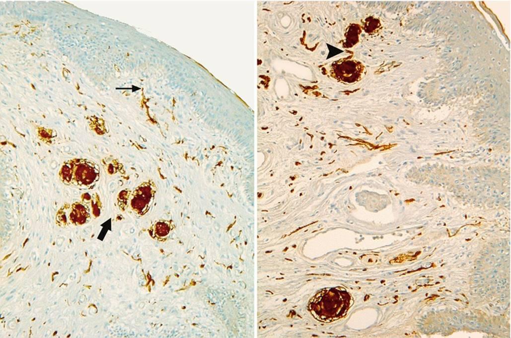 sensitivity Clitoris thermal