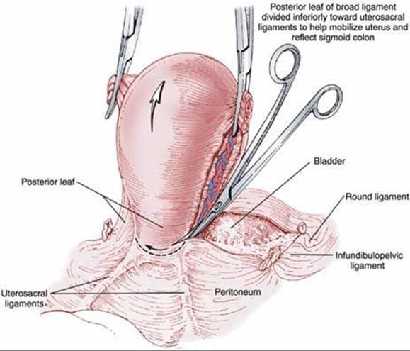 Hysterectomy - Berek and Novak\'s Gynecology 15th Ed.
