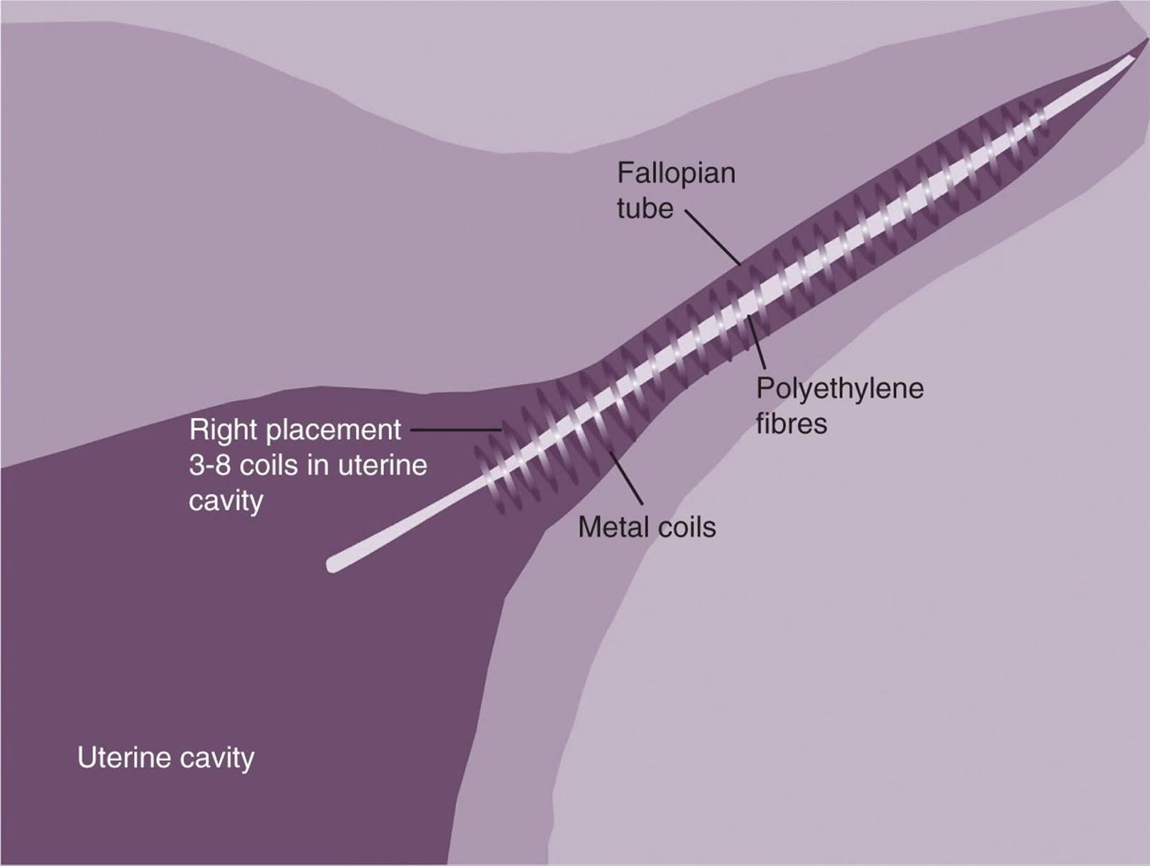 Therapeutic Gynecologic Procedures Current Diagnosis Treatment