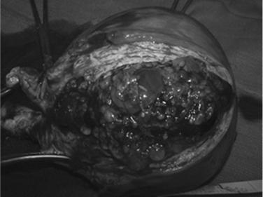 Gestational Trophoblastic Diseases Current Diagnosis Treatment