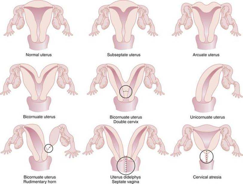 Congenital Anomalies And Benign Conditions Of The Uterine Corpus And