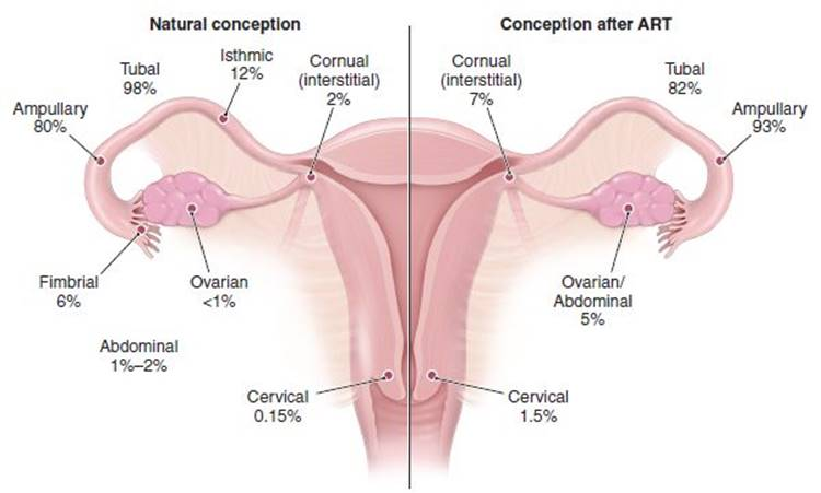 ectopic pregnancy and abortion - obstetrics and gynecology ... body temp diagram
