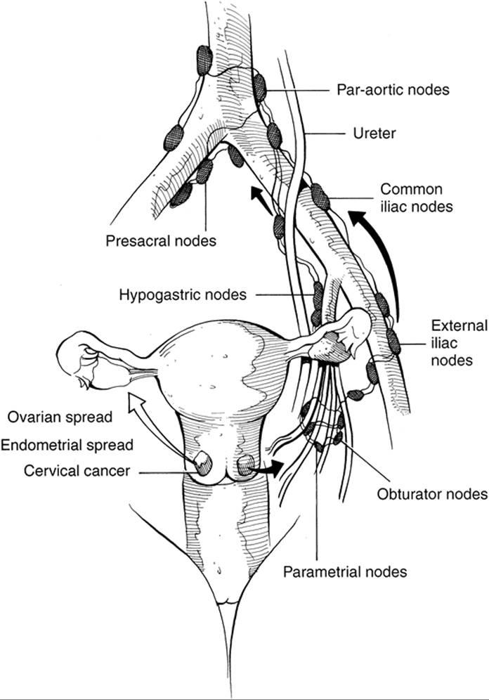 Cervical Cancer Danforths Obstetrics Gynecology 9th Edition