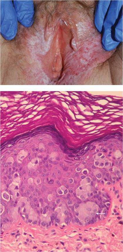 girls-squamous-cell-vulva-lesion