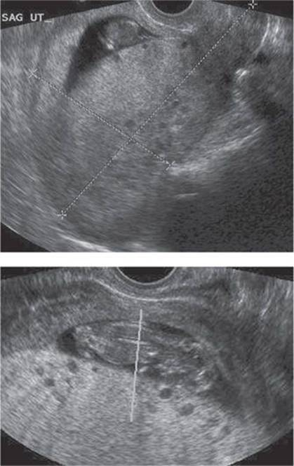 Williams Obstetrics 25th Edition PDF FREE Download