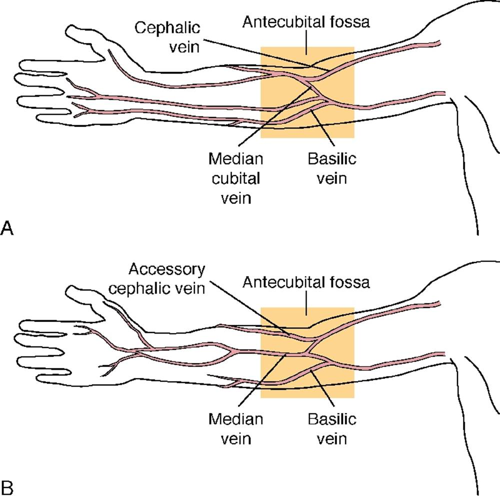 Basilic And Cephalic Vein Clinical Application