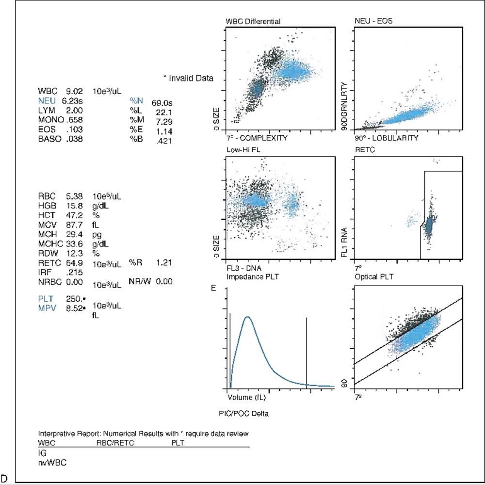 Automated blood cell analysis - Rodak's Hematology: Clinical