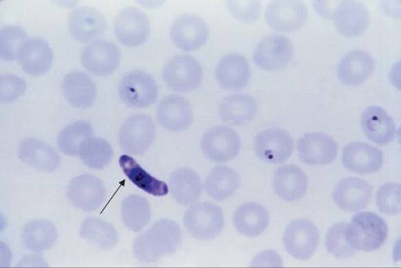 blood amp tissue protozoa review of medical microbiology