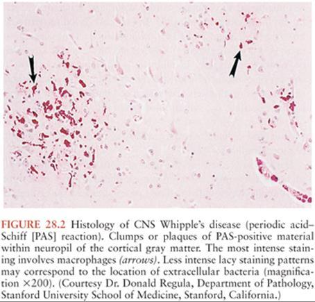 whipple bacteria ie