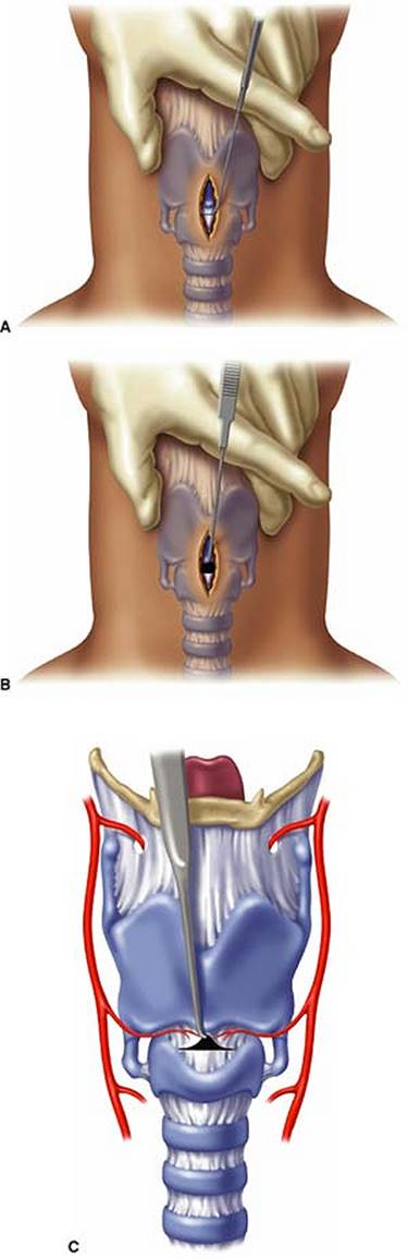 Surgical Airway Techniques Manual Of Emergency Airway Management