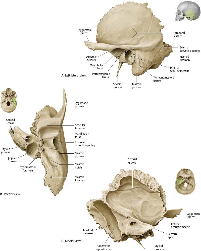 Temporal bone anatomy pdf
