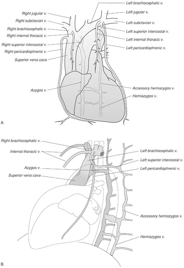 Normal Anatomy of the Chest - Chest Radiology: The Essentials, 2nd ...