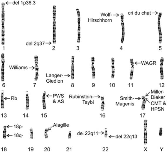Structural Rearrangements - Chromosome Abnormalities and Genetic