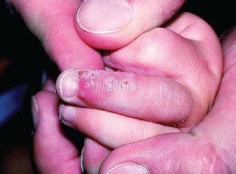 Rashes: Vesicular, Pustular, and Scaly Lesions - Pediatrics