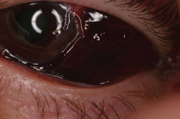 ruptured globe eye injuries - 604×402