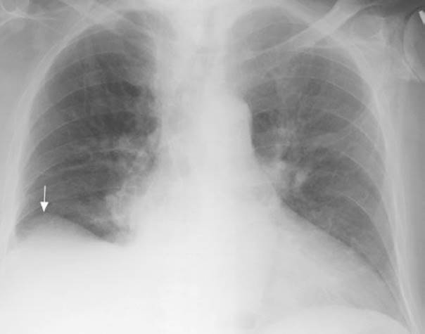 Pleural Effusion - Pulmonary Emergencies - Harwood-Nuss