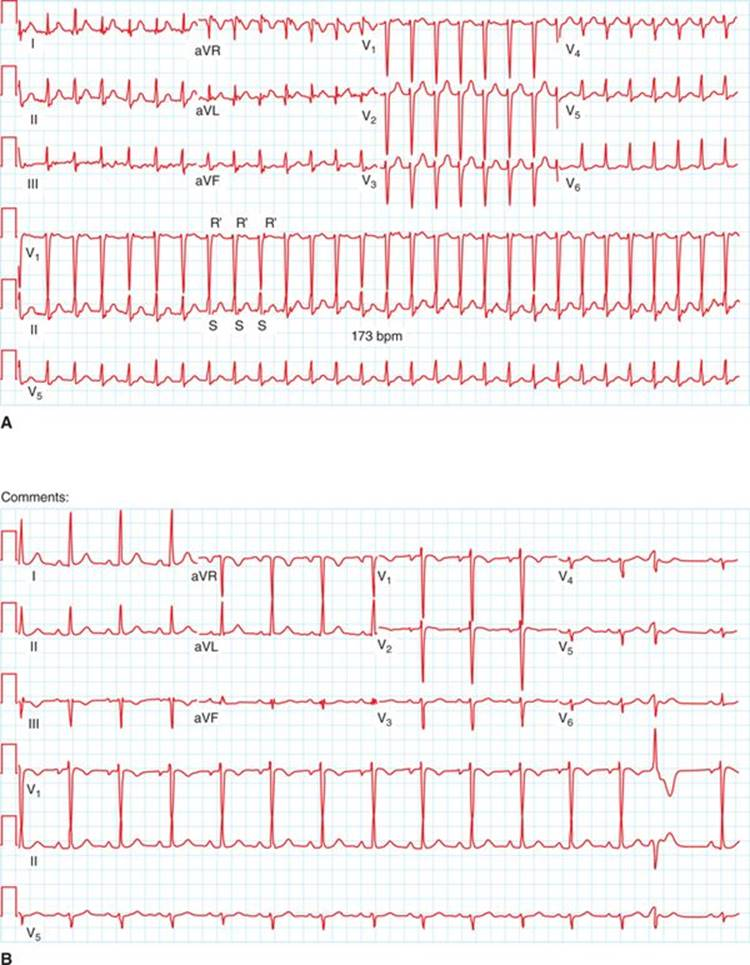 Typical Atrioventricular Nodal Reentrant Tachycardia Color Atlas And Synopsis Of Electrophysiology 1st Ed