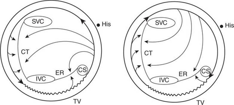 isthmus-dependent atrial flutter