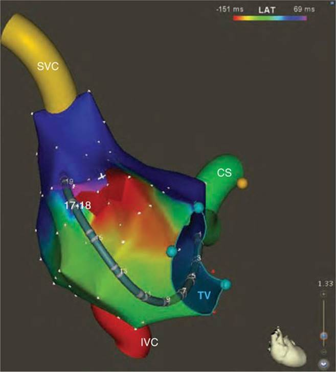 INCISIONAL ATRIAL FLUTTER: INSIGHTS ON HOW TO MAP AND ABLATE