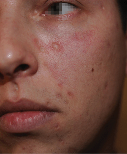 hpv skin rash on face