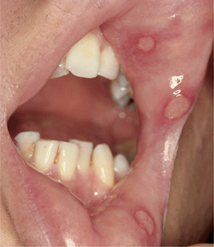inflamed papillae icd 10