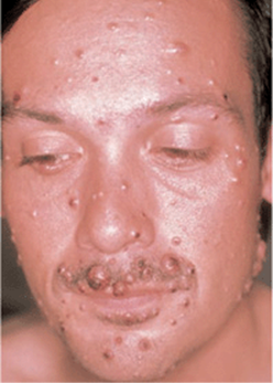 Invasive and Disseminated Fungal Infections - Fitzpatrick's