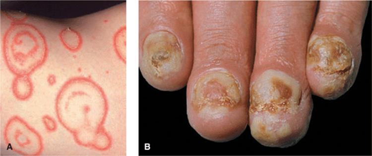 palmoplantar pustular psoriasis icd 10