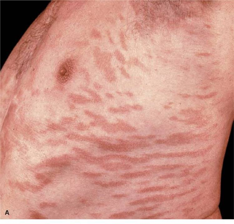 Dexametazon kenőcs psoriasis