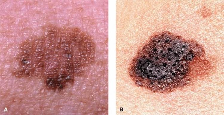 Precancerous Lesions and Cutaneous Carcinomas
