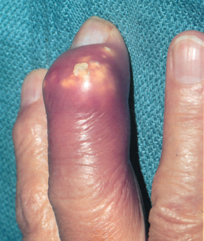 gout relief during pregnancy cure for pseudogout food in high uric acid list