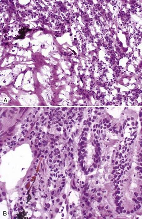 Asbestosis - Thoracic Pathology: A Volume in the High Yield