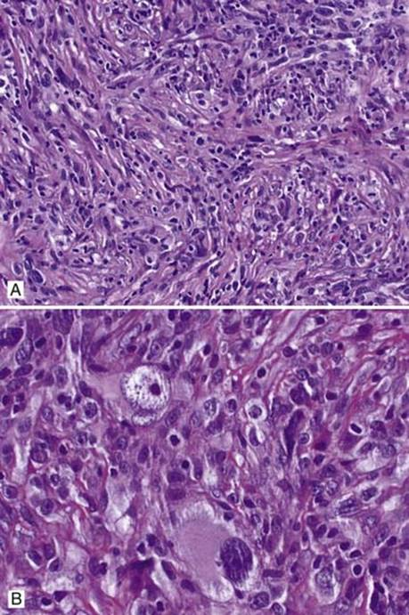 sarcomatoid mesothelioma
